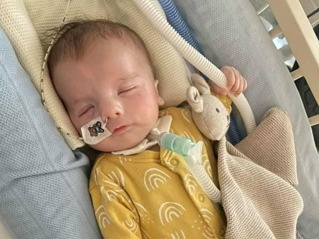 Baby Teddy was born with a rare syndrome and a fundraiser has been set up for the charity which has helped him and his parents