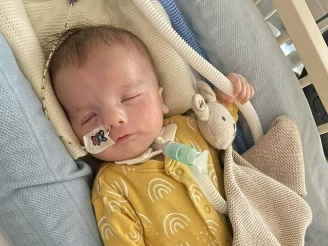 It was discovered Teddy had clubfeet and micrognathia, a condition which causes a smaller than usual lower jaw.