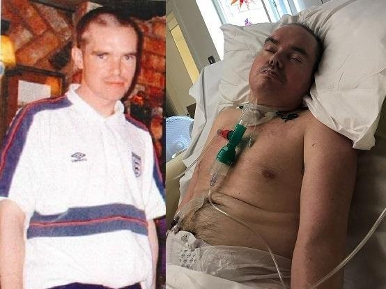 Alec's family wanted to publish these photos of him; one before the assault in February 2007, and the other as he was treated in his last days of life, to illustrate the effect of such a violent act. (Credit: Lancashire Police)